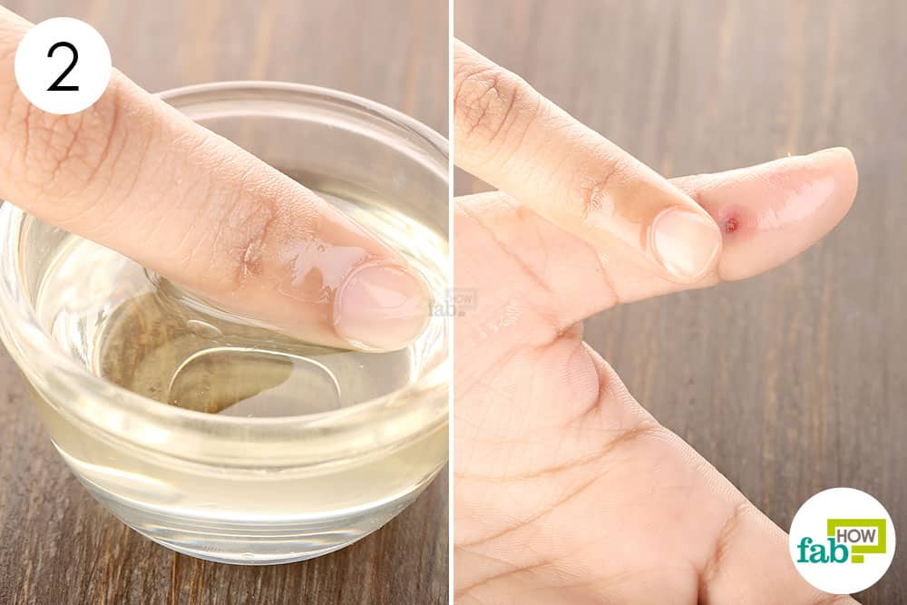 How to Treat and Heal Skin Abscesses: 8 Proven Home Remedies | Fab How