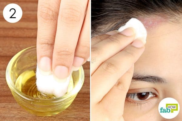 Dip a cotton ball in the oil blend and apply on the affected area to get rid of seborrheic dermatitis
