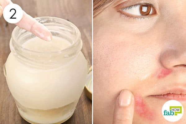 Apply the oil blend as a moisturizer to get rid of perioral dermatitis