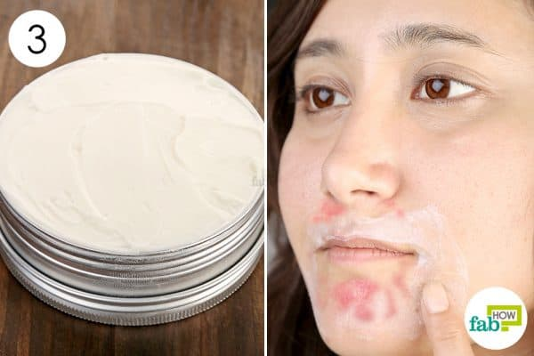 Apply the prepared cream on rash to get rid of perioral dermatitis