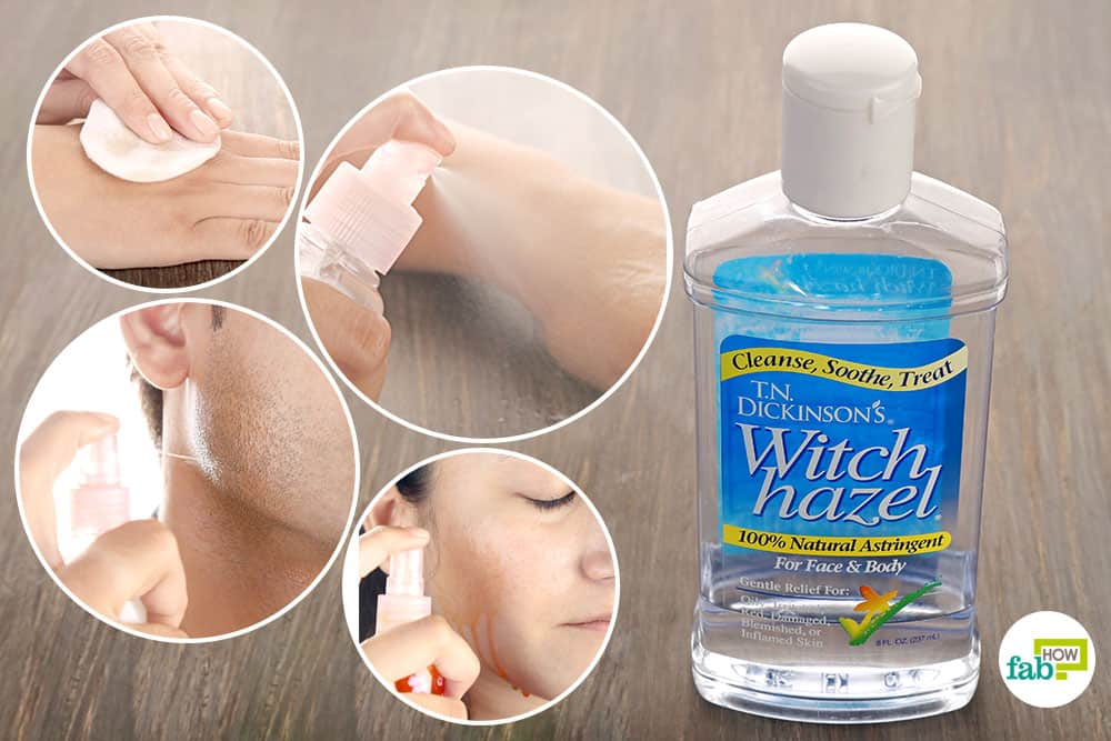 22 Best Uses of Witch Hazel for Health and Beauty