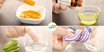 How to Treat Acne Inversa