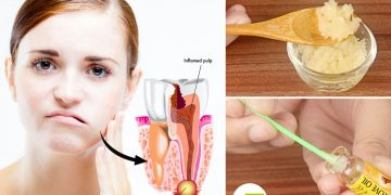 feat how to get rid of an abscessed tooth