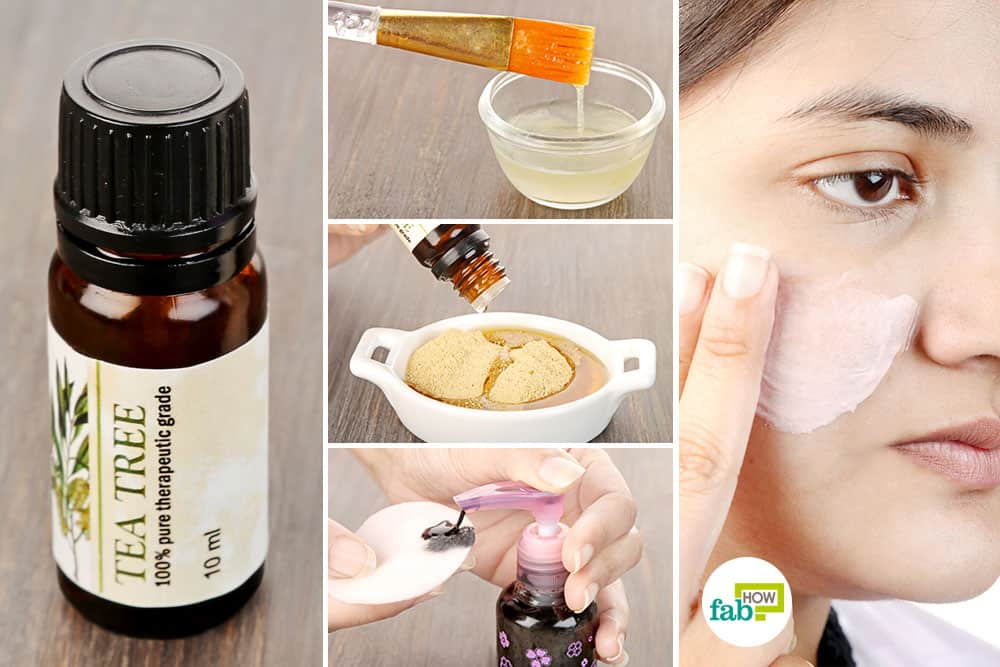 Use tea tree essential oil to get rid of acne