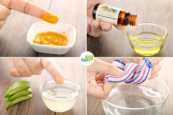 get rid of acne inversa