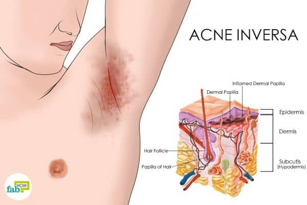 Acne inversa leads to painful red bumps in sweat-prone areas like the armpits to get rid of acne inversa