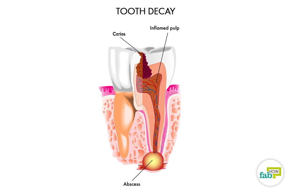 Top 6 Home Remes To Get Relief From An Abscessed Tooth