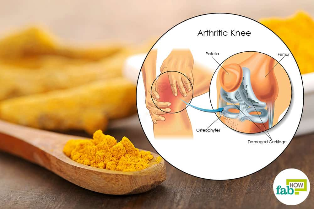 intro-use-turmeric-for-arthritis.jpg