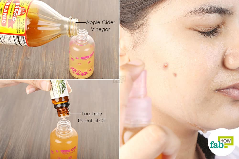 Mix water, apple cider vinegar and tea tree oil; shake well and spray on acne-affected areas