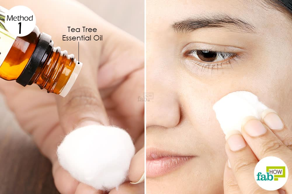 Apply undiluted tea tree oil directly on skin in case of severe acne breakouts