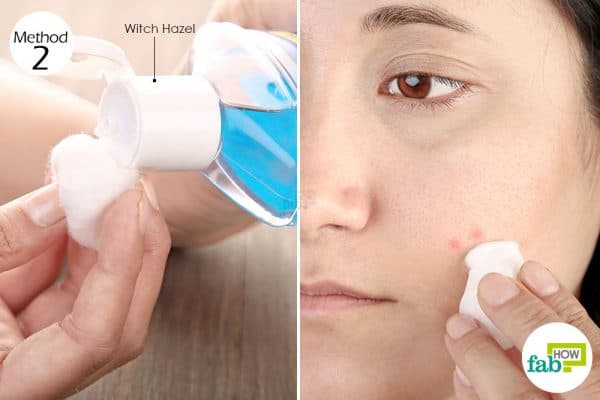 Apply witch hazel extract directly on acne breakouts