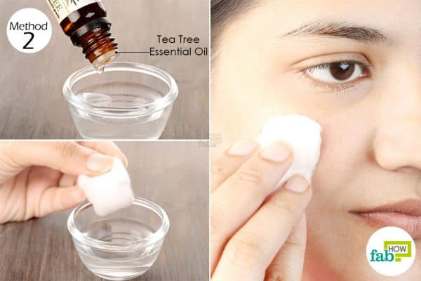 Apply a solution of tea tree oil and water twice daily to get rid of acne