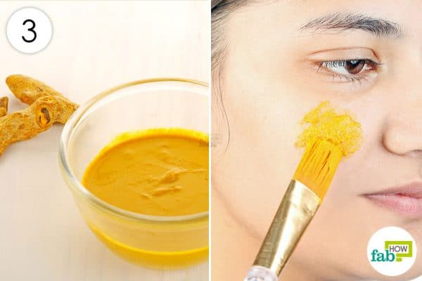 The turmeric and gram flour mask will help treat acne and keep pimples away