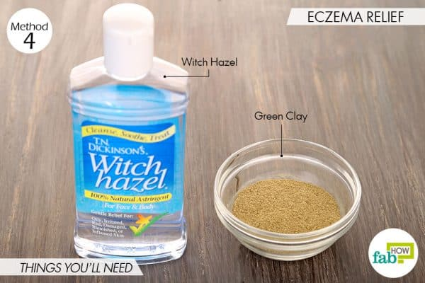 Things needed to treat eczema using witch hazel