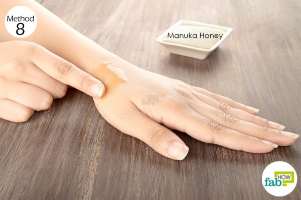 Apply Manuka honey over the infected skin to get rid of cellulitis