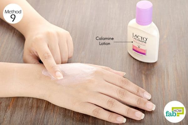 Apply calamine lotion to get rid of itchy skin