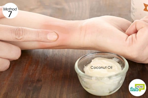 Apply extra-virgin coconut oil directly on the wound to heal minor wounds quickly