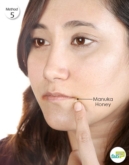 manuka honey for angular cheilitis