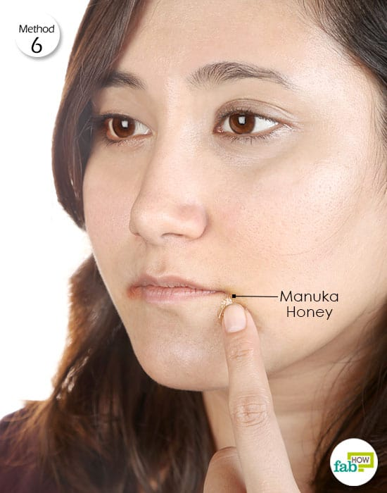 Apply Manuka honey on the cracked and blistered skin to get rid of angular cheilitis