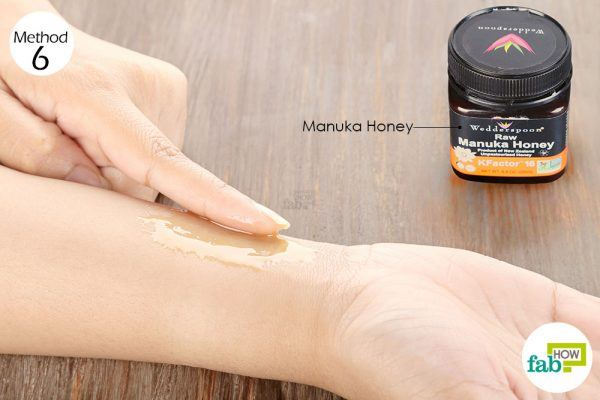 Apply Manuka honey twice daily to get rid of itchy skin