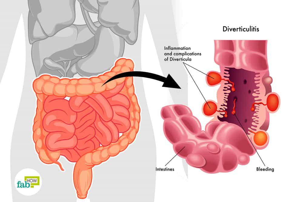 feat how to treat diverticulitis