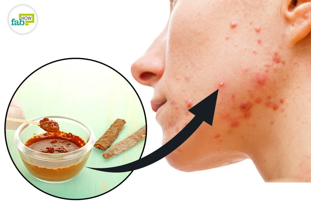 feat how to use cinnamon for acne