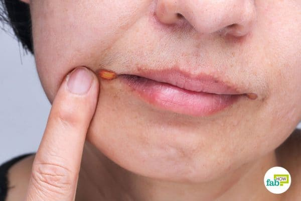 Use home remedies to get rid of angular cheilitis