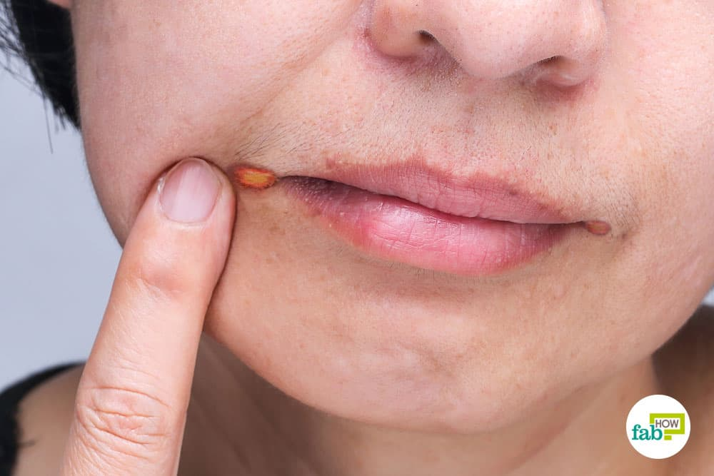 How To Get Rid Of Angular Cheilitis Fab How