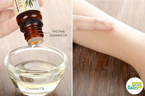 Dilute tea tree oil in coconut oil and use to get rid of cellulitis