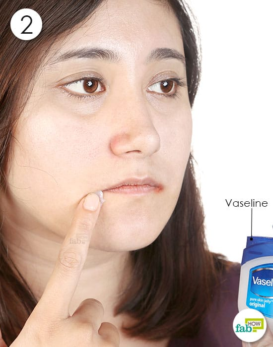 Apply a thick layer of Vaseline over the inflamed skin to get rid of angular cheilitis