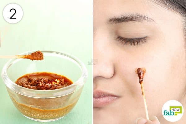 Mix well and apply to use cinnamon for acne