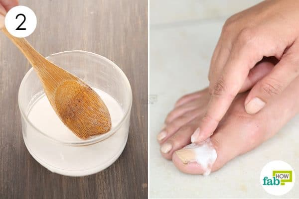 Mix well and apply to use borax for toenail fungus