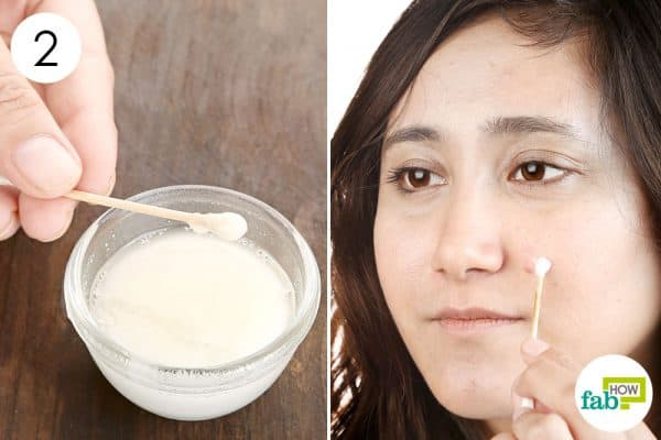 Apply the blend on acne spots to use baking soda for acne