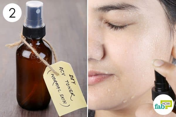 Spary this DIY facial toner twice daily to get healthy and glowing skin