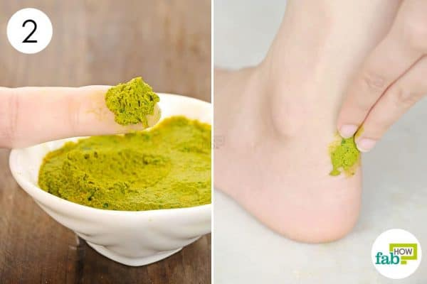 Apply the paste to the inflamed and flaky skin to use turmeric for psoriasis
