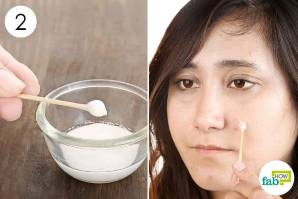 Apply the paste to use baking soda for acne