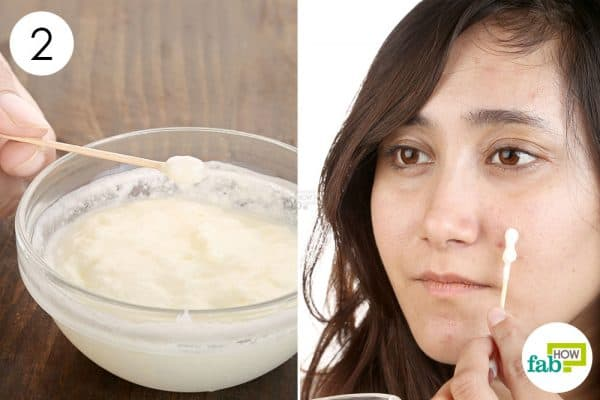 Apply to use baking soda for acne
