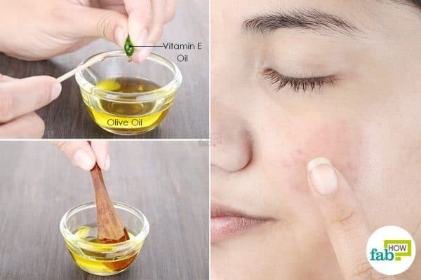 Use vitamin E oil and olive oil to get rid of hyperpigmentation