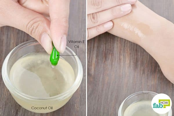 Use vitamin E oil and coconut oil to get rid of dry, itchy skin