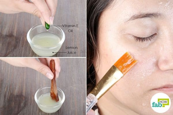 Use vitamin E oil with lemon juice to apply oily skin