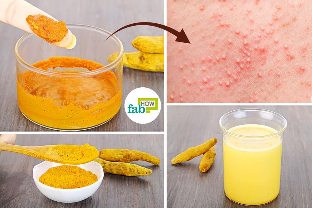 Use turmeric for folliculitis