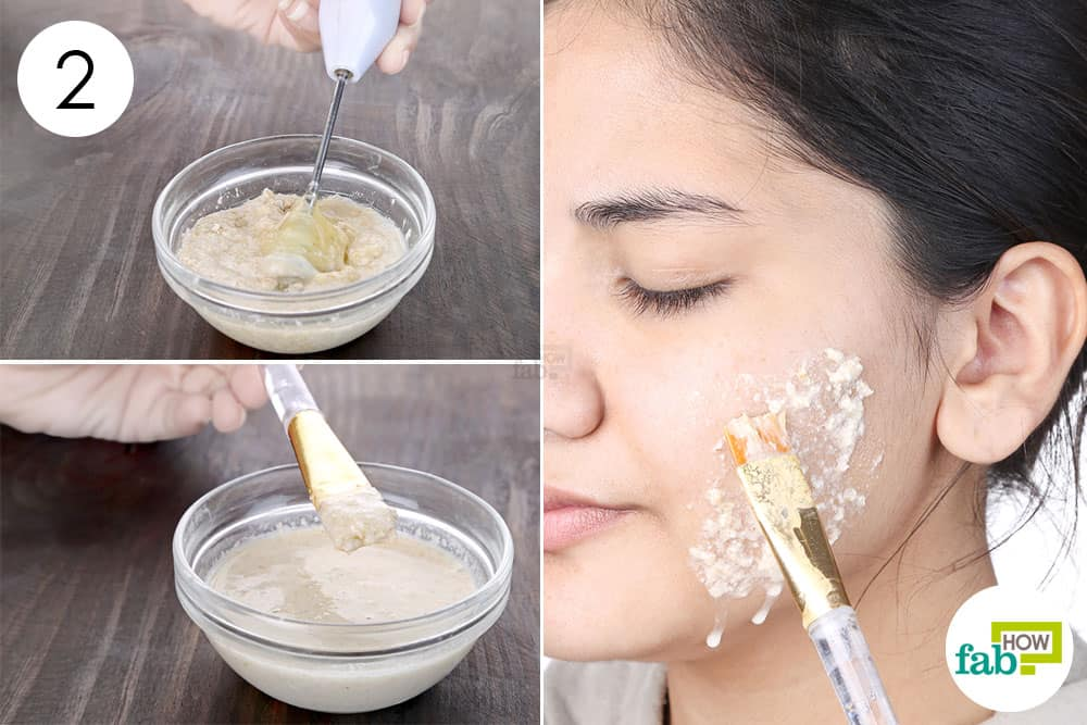 how to get rid of blackheads and oily skin naturally