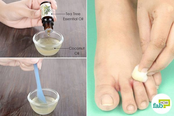 use tea tree oil for fungal infections-to treat athlete's foot naturally
