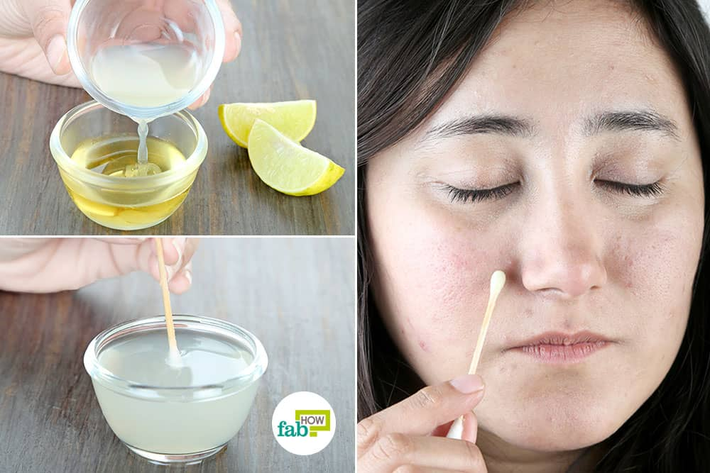 How to Use Lemons to Get Rid of Dark Spots