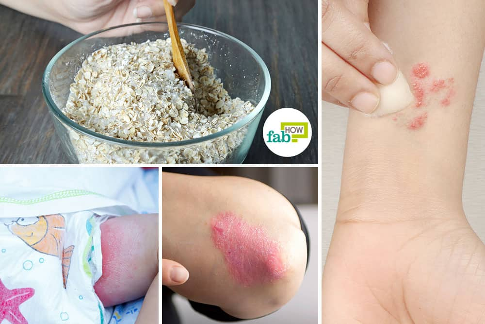 use oatmeal for skin conditions