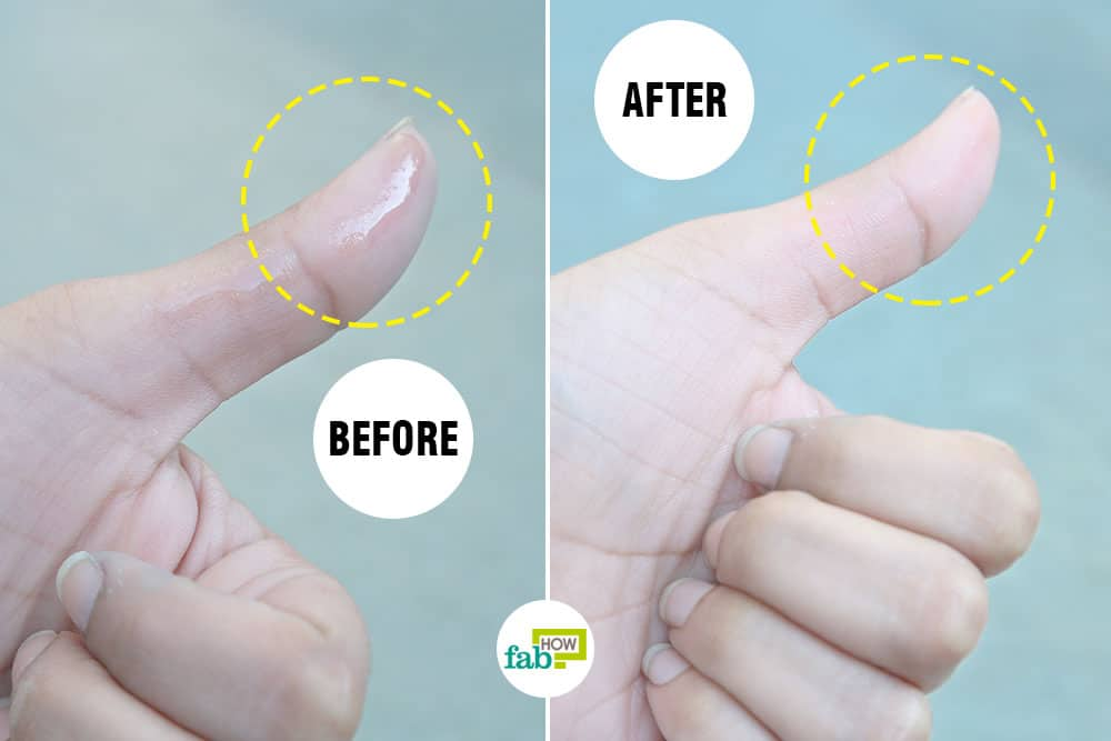 How To Remove Super Glue From Skin 4 Methods That Work Fab How