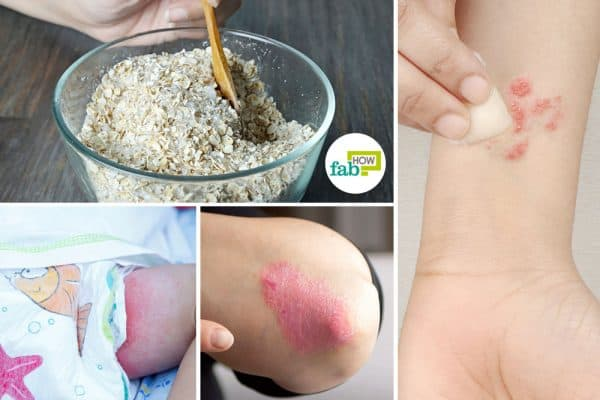 how to use oatmeal for skin conditions