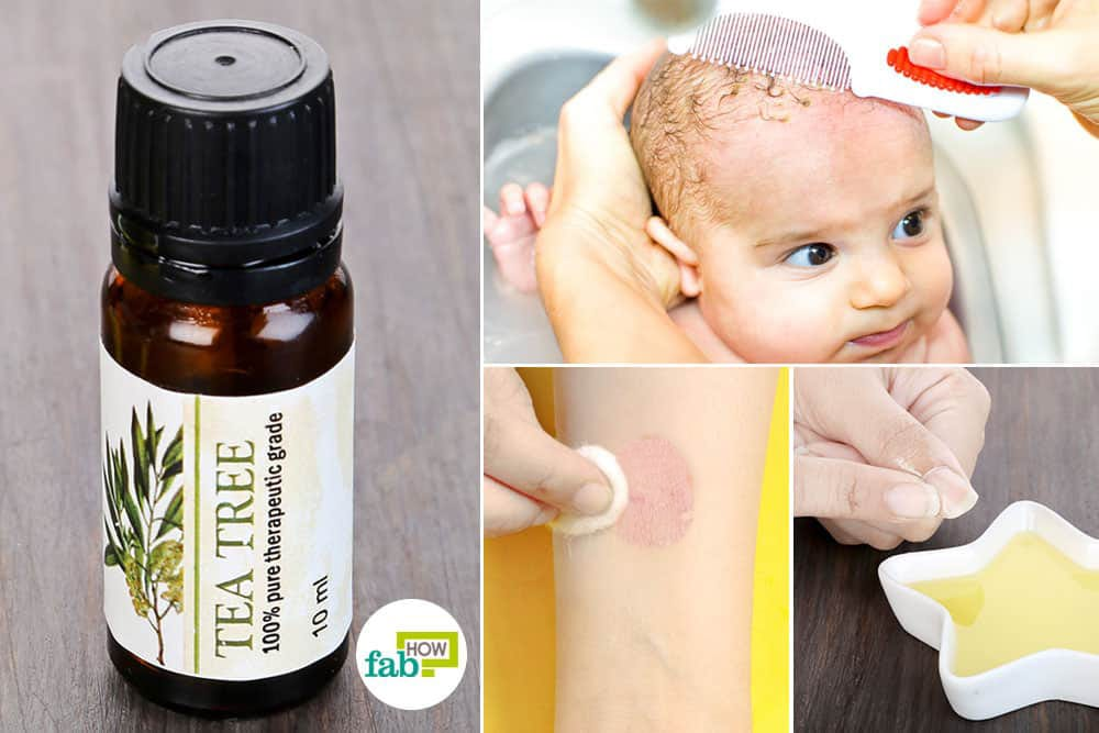 use tea tree oil for fungal infections