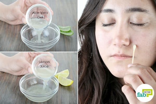 use lemon to get rid of dark spots with aloe vera gel