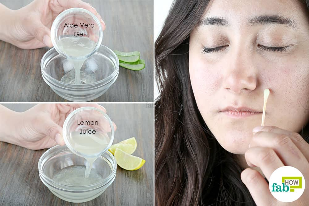 How To Use Lemon Juice For Acne Scars advise